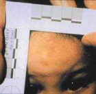 Adult bite mark. Victim also had cigarette burns on hands.