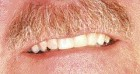 FIGURE 11--Buccal view of the smile ten years after the partial denture was placed.