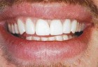 FIGURE 4--Definitive restorations with proper function and aesthetics.