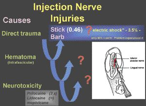 Inferior Alveolar Nerve Damage During Removal of Mandibular Third