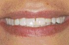 FIGURE 2--Discolored composite restorations in 1-1 and 2-2 and an anterior wear pattern.