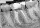 FIGURE 3C--Post-operative radiograph displaying convergence of middle mesial and mesiolingual canals.