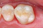 FIGURE 31--An occlusal view of the direct MO composite restoration.