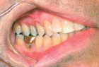 FIGURE 3--Root surfaces are covered with hybrid composite restorations, cord removed and the restorations finished and polished.