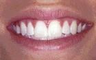 FIGURE 17--Post op smile immediately post op.