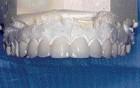 FIGURE 53--Porcelain Veneers on solid stone model.