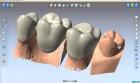 DentCAD