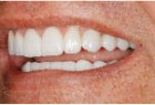 Figure 4C - Lateral smile completed treatment.
