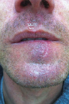 Figure 7 - One-month post-operative photograph of lower lip.