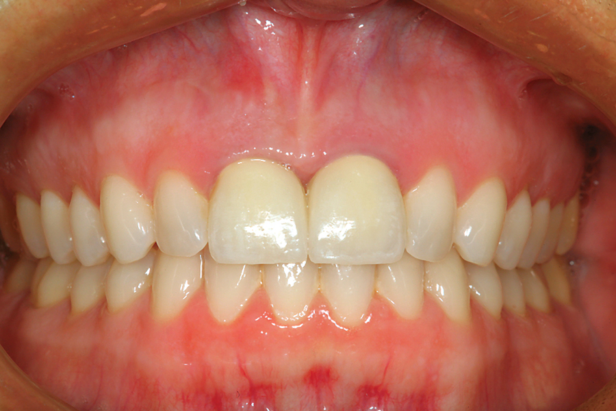 Figure 33: A full mouth retracted view of the case at the two-week post operative check. The patient is very pleased with the esthetic result.