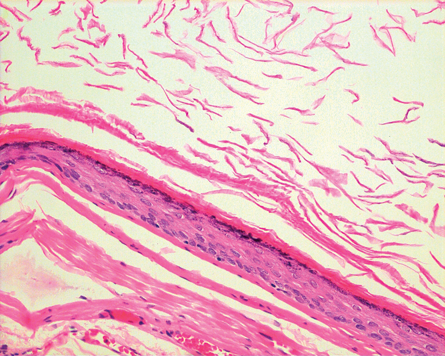 Figure 3B. The cyst was lined bykeratinizing stratified squamous epithelium with granular cell layer.