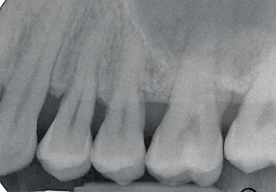 Figure 9D. Two year radiographic follow up hard tissue response.