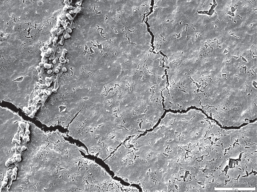 Figure 5B. 99.9% removal of biofilm from tooth surface after 3 seconds of treatment with a water flosser under SEM.