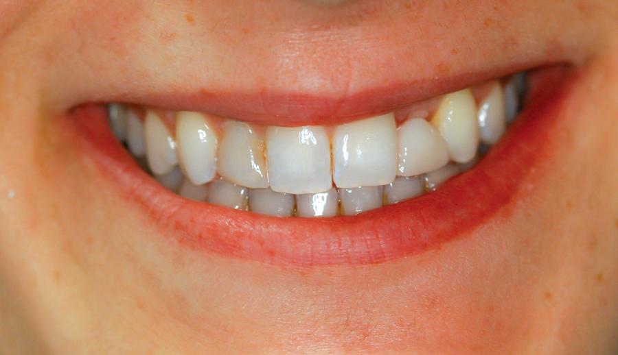 Figure 27. Final post-cementation smile.