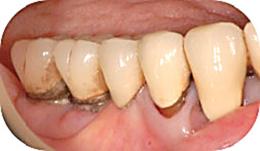 Figure 13. (B)
