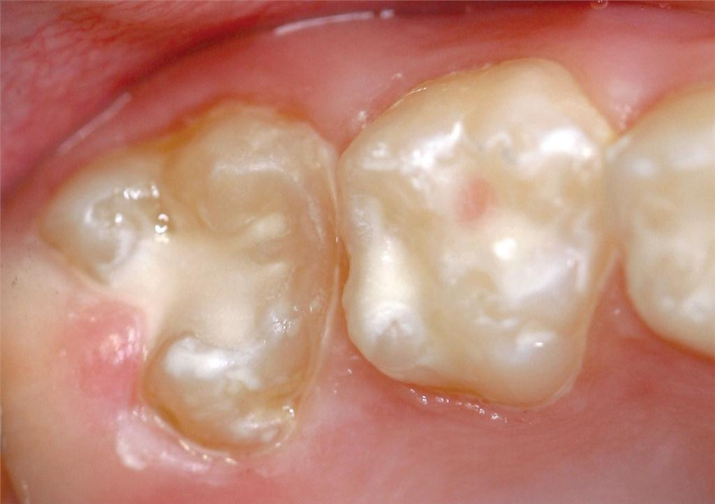 Figure 4B. Molar after sealing with glass ionomer plus the deciduous second molar. Note: glass ionomer has been flowed under the operculum.