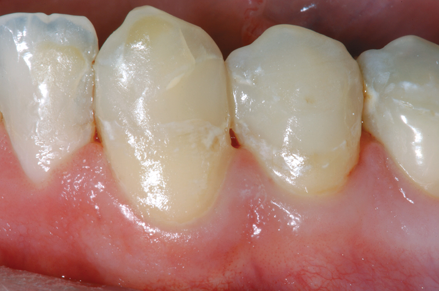 Figure 9. Mandibular canine and first premolar restored with nano-hybrid composite resin (N'Durance).