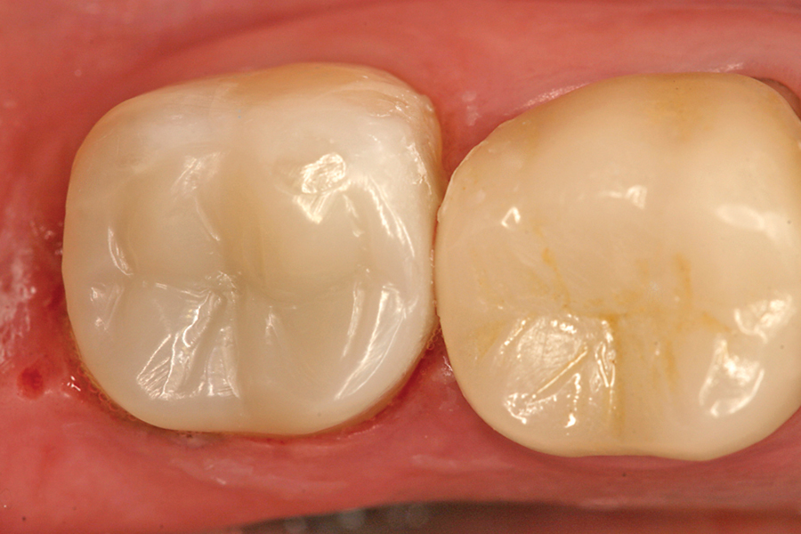 Figure 7. Immediate post-operative view of the nano-ceramic resin onlay for tooth #18.