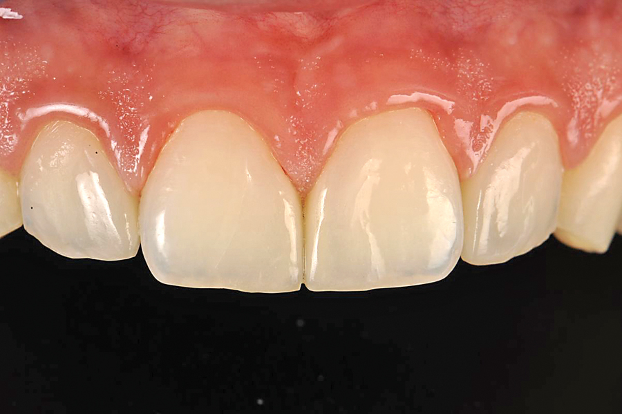 Figure 11. The additional veneers after 13 months. Esthetics are maintained. The papillas have a nice natural look, even without teeth reduction. Even if on a macro view the margins can be seen, the esthetic limitations of such a case have almost no impact if compared to the non-aggressiveness of the procedure.