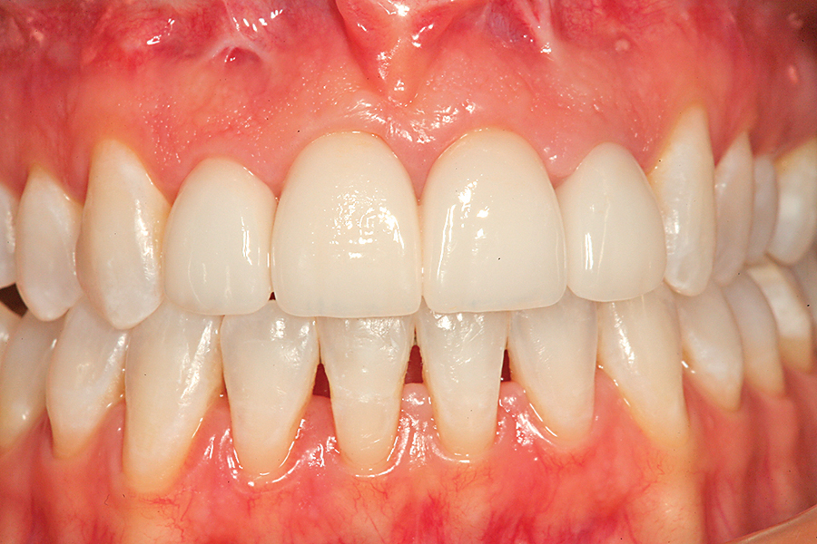 Figure 22. A retracted full arch view of the completed combination tooth whitening/porcelain veneer case at a one-month follow up visit.