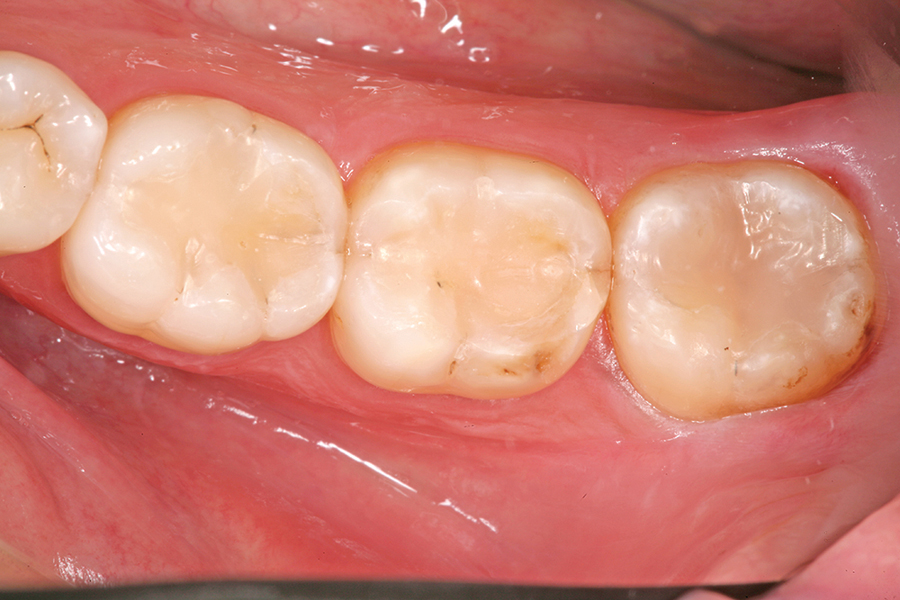 Figure 45. One week postoperative photograph of the final restorations on teeth #4.6, 4.7, and 4.8.