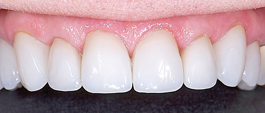 Figure 7A. After satisfied patient with completed veneers.