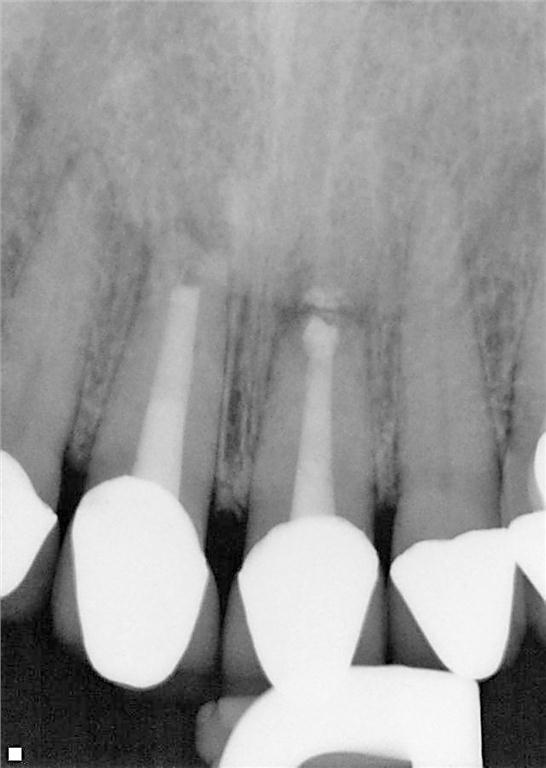 Figure 13. 3-month recall radiograph.
