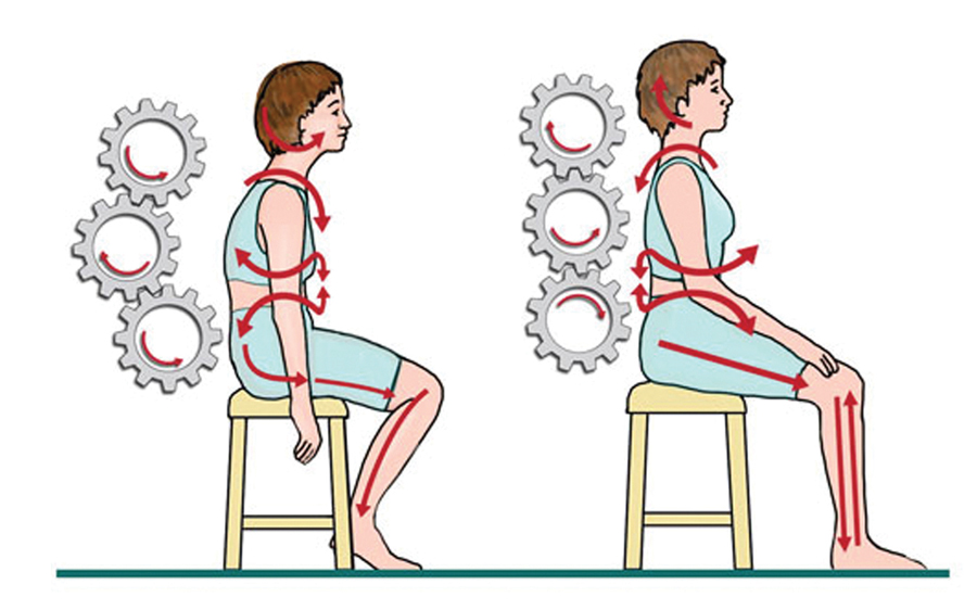 "Figure 1. The common dental posture, and the ""cog and wheel"" effect contributed by our thoracic spine and the subsequent changes in the body leading to long-standing injury."