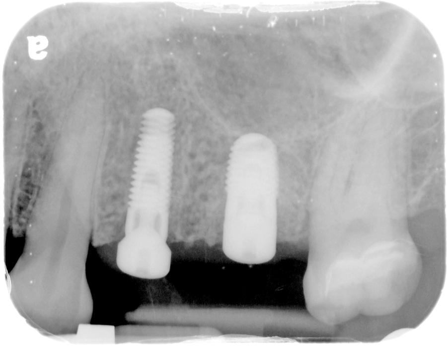 Figure 32. Final post-operative radiograph of implants 25-26.
