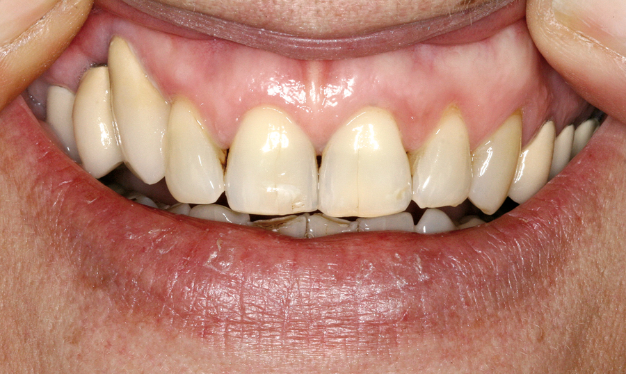 Bone Grafts For Implant Dentistry: The Basics - Oral Health Group