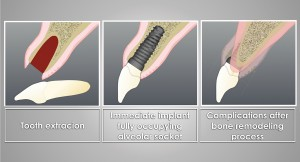 Wide immediate implants that would occupy most of the alveolar socket space, leaving it without gaps, were placed in an attempt to counteract alveolar ridge contraction. Unfortunately implants do not stop the bone remodeling process.