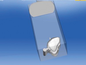 FIGURE 6. Crown with attachment (for preci-vertix sleeves)