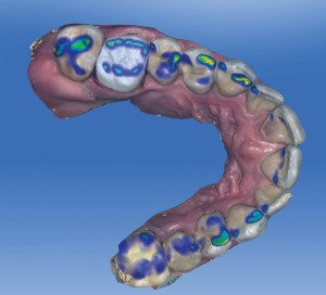 Initial Proposal of the Restoration with a Colour Map of the Occlusal Contact Points on the Full Arch
