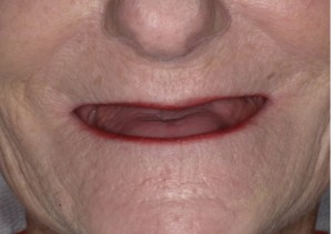 FIGURE 1. Patient presents with full edentulism for over 20 years and dissatisfied with previous old dentures due to lack of retention, soft tissue support and masticatory function due to worn denture teeth.