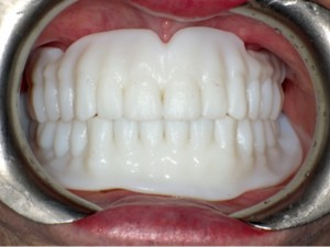 FIGURE 14. Try in dentures to evaluate fit, retention, stability, support, contour, lip support, aesthetics and vertical dimension of occlusion.