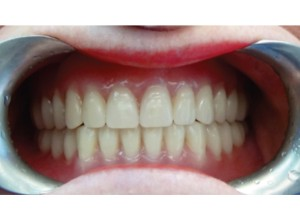 FIGURE 18. Initial insertion of maxillary and mandibular complete dentures by third appointment.