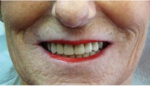 FIGURE 19. Satisfied patient with digital dentures providing retention, stability, support, aesthetics and functional occlusion.
