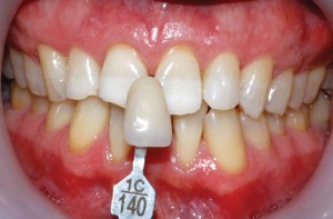 FIGURE 7. Post-op whitening photo with the initial shade tab to see nice improvement.