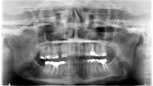 FIGURE 5. Patient Panoramic X-ray prior to the treatment