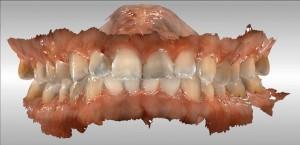 Cowburn1 Intra-Oral Scan - Bite