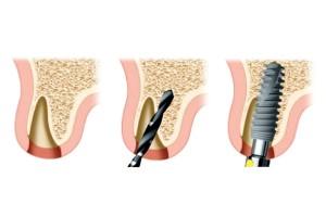 FIGURE 8. Implant in palatal position (Nobel Biocare, Zurich, Switzerland).