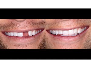 Full Natural Smile – frontal view – 1:2 magnification – before and after