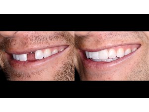 Full Natural Smile – left lateral view – 1:2 magnification – before and after