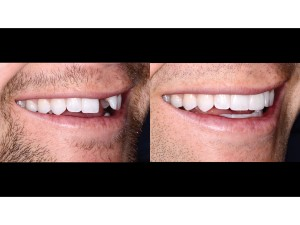 Full Natural Smile – right lateral view – 1:2 magnification – before and after