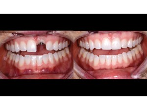 Upper and lower teeth slightly parted – frontal view – 1:2 magnification – before and after
