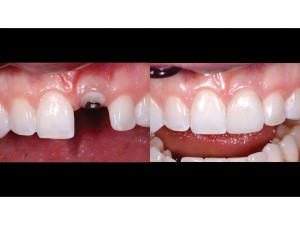 Maxillary anterior in view only – frontal view – 1:1 magnification – before and after