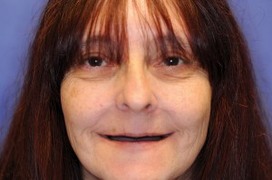 FIGURE 1. Full face photo before the treatment.
