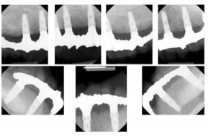FIGURE 77. Verification radiographs to make sure frameworks are fully seated on implants.
