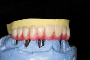 FIGURE 62. Waxing of denture teeth to the opaqued framework(Maxillary)