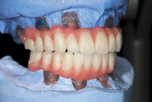 FIGURE 67. Processed acrylic dentures fitted back to articulator. Adjustments made to confirm occlusion and denture base form. Special attention is taken to ensure no fitting surface concavities.
